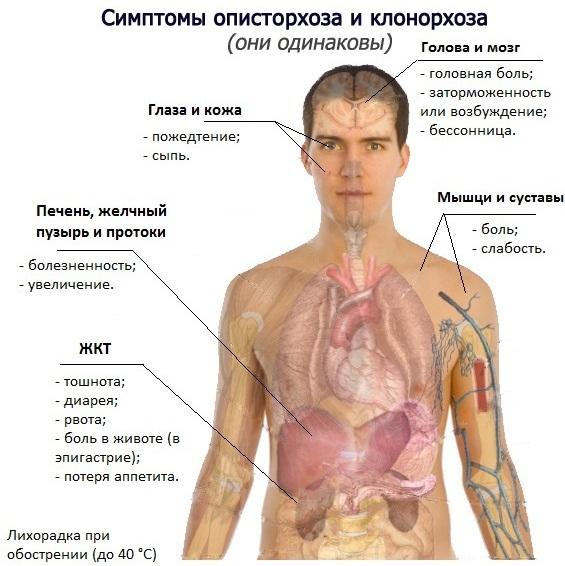 Что такое гельминтоз? - глисты (гельминты), виды глистов | виды, симптомы, диагностика, лечение