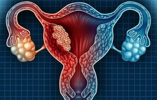 Аденоматозный полип эндометрия в матке - лечение, удаление