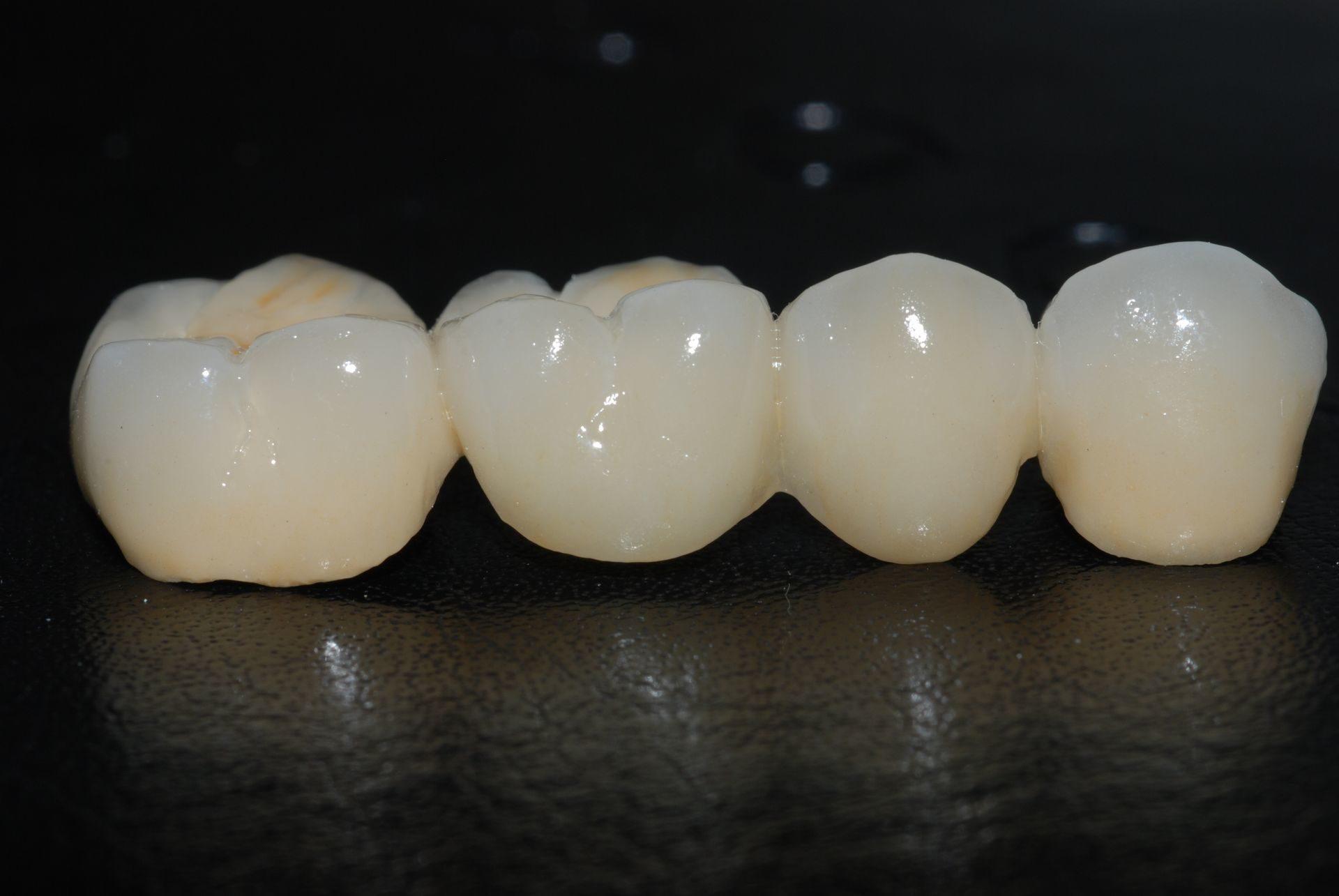 Виды зубных коронок и советы при выборе | эскулап