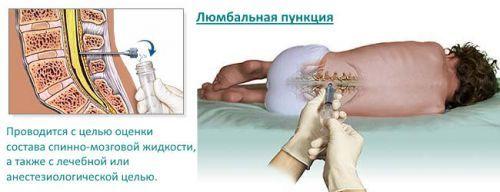 Пункция фолликулов при эко - этапы, наркоз, самочувствие после процедуры