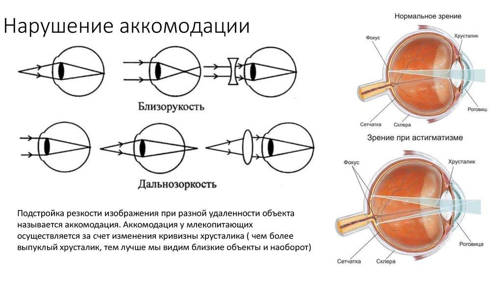 Близорукость и дальнозоркость: что это такое, в чем отличия заболеваний | fr-dc.ru