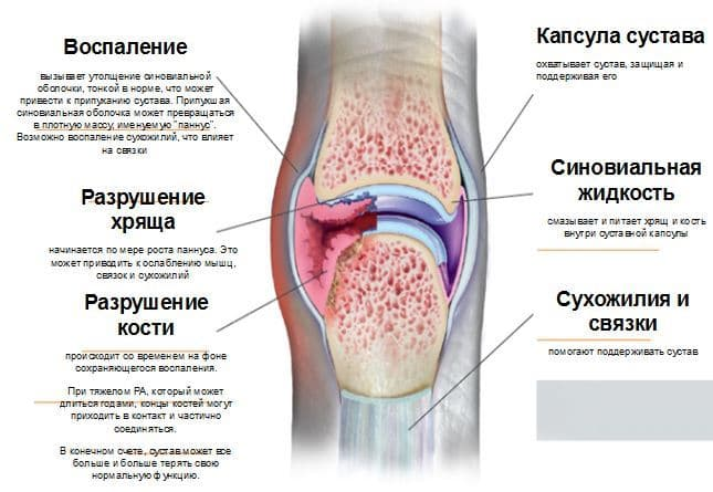 Отличия ревматического артрита от ревматоидного