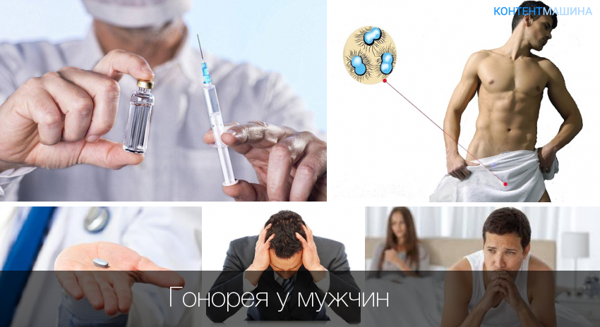 Причины, симптомы и лечение триппера (гонореи) у мужчин
