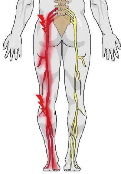 Ишиас: симптомы и лечение. что это такое и как избавится