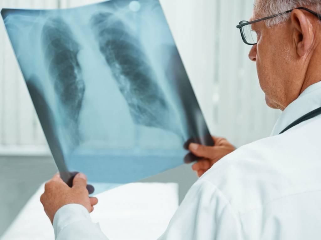 Причины и проявления симптома матового стекла в легких