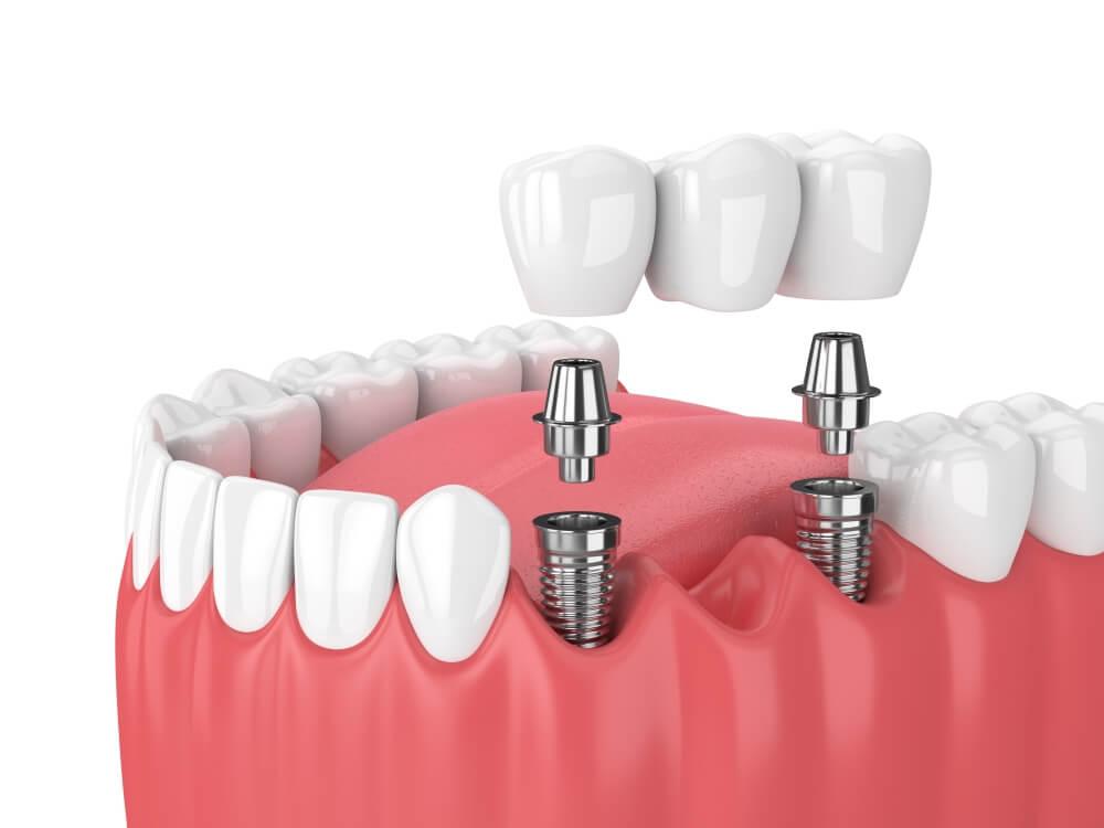 Современные методы и технологии имплантации зубов, цены, фото