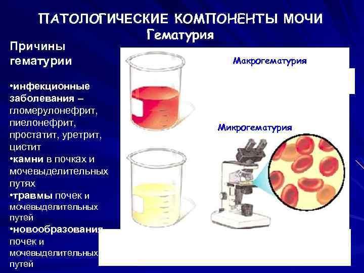 Кровь в моче (гематурия) у женщин: что это может быть за болезнь, почему появляется, болевые симптомы, диагностика и лечение