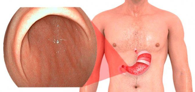 Бульбит желудка - что это такое: катаральный бульбит двенадцатиперстной кишки: симптомы и лечение