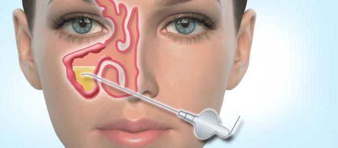 Что такое пункция в гинекологии