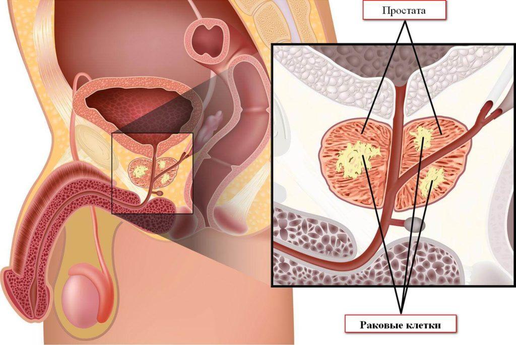 Из-за чего появляется аденома предстательной железы у мужчин?