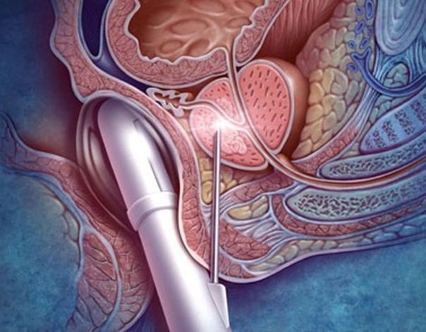Гиперплазия предстательной железы: лечение, последствия