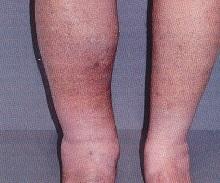 Тромбофлебит. причины, симптомы и признаки, диагностика, лечение и профилактика.