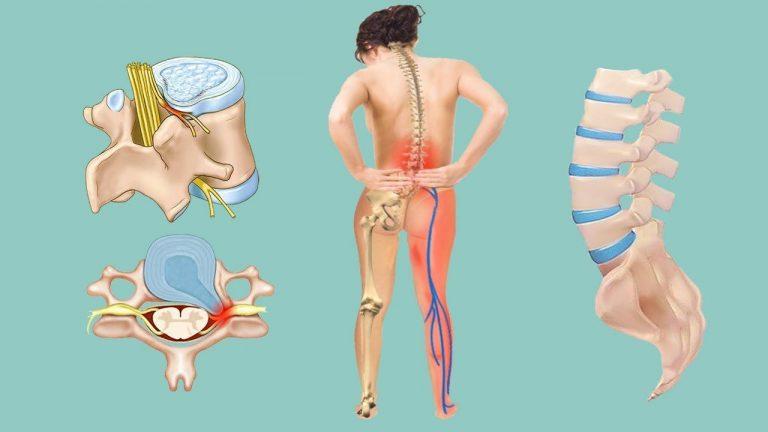 Дорсопатия пояснично крестцового отдела позвоночника что это такое и лечение