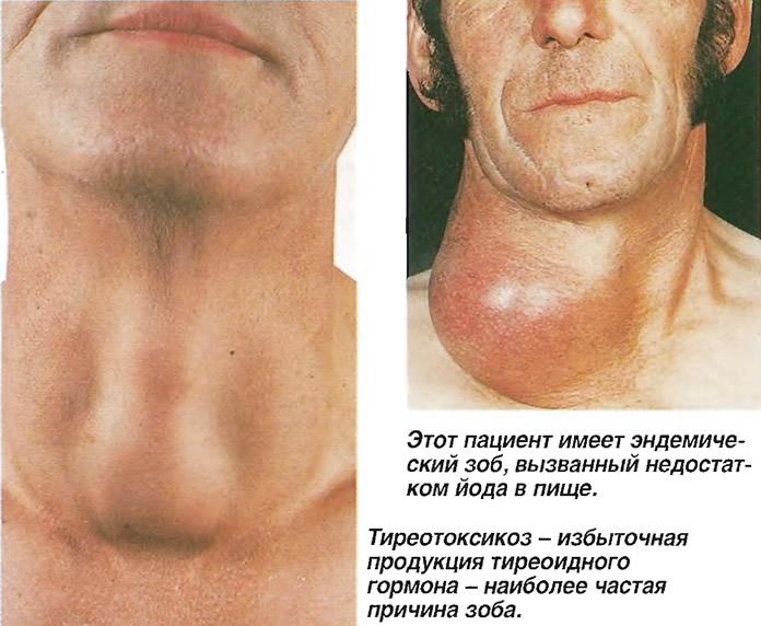Виды заболевания тиреотоксикоз: диффузный, клинический, узловой и др.