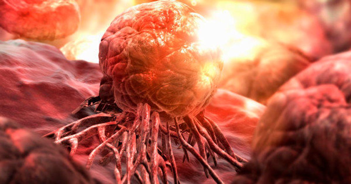 Онкологические заболевания, их причины и симптомы