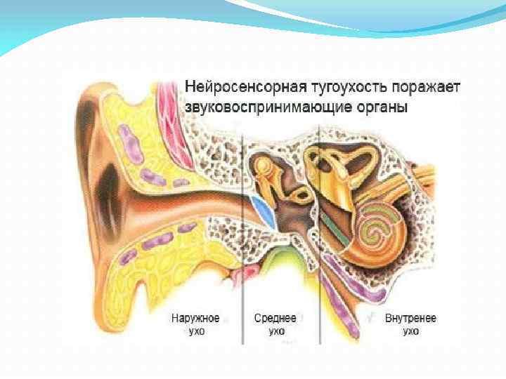 Кондуктивная тугоухость - что это такое, двусторонняя 2 степени, лечение потери слуха при смешанной и нейросенсорной, аудиограмма