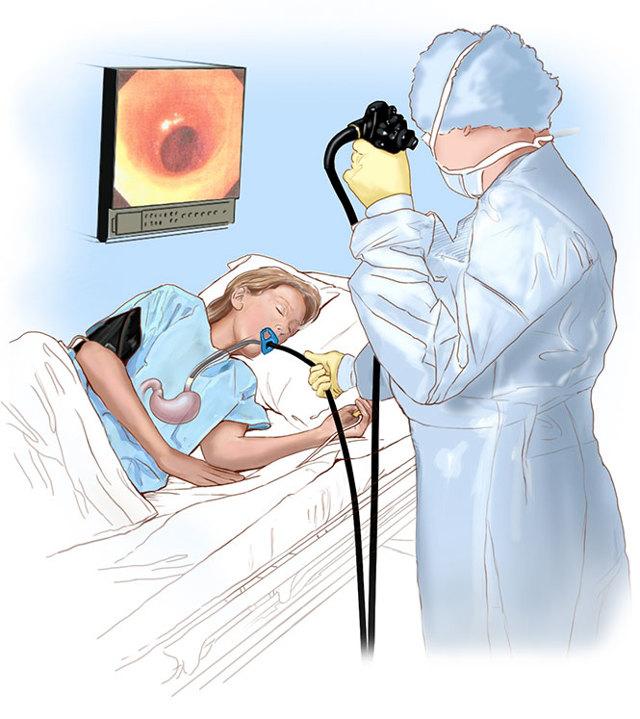 Что лучше: введение зонда при гастроскопии через нос или рот? раскрываем секреты трансназальной диагностики