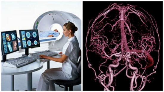 Что такое ангиография в медицине