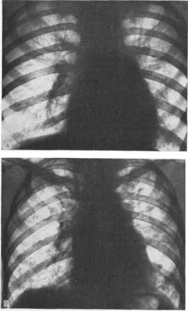 Диффузный пневмосклероз легких – основные признаки, лечение