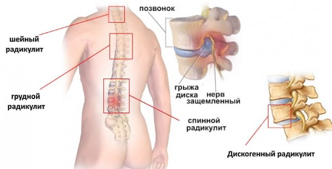 Радикулопатия: факты, что это такое, симптомы, причины, диагностика, лечение, факторы риска, прогноз