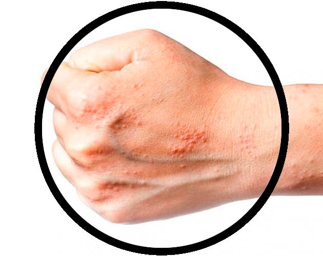 Что такое мацерация кожи?