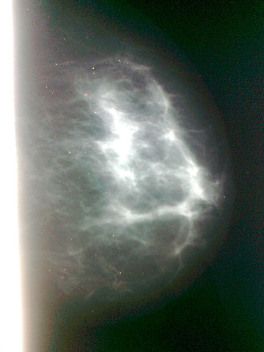 Микрокальцинаты в молочной железе: что это такое, причины, опасность.