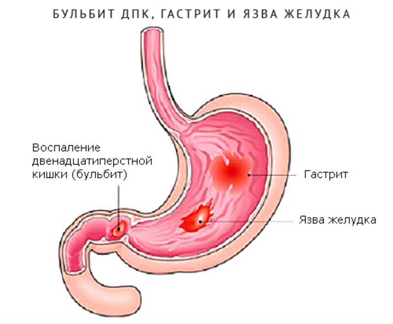 Симптомы и лечение эрозивного бульбита
