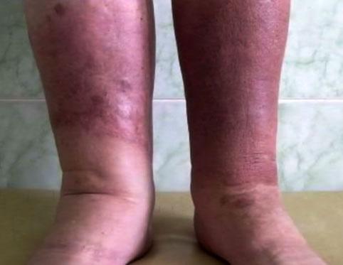 Рожа - симптомы болезни, профилактика и лечение рожы, причины заболевания и его диагностика на eurolab