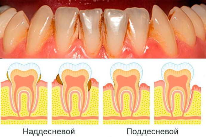Накопление зубного камня: причины, нужно ли удалять, способы чистки