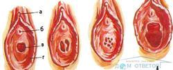 Наличие девственной плевы фото - вопрос гинекологу - 03 онлайн
