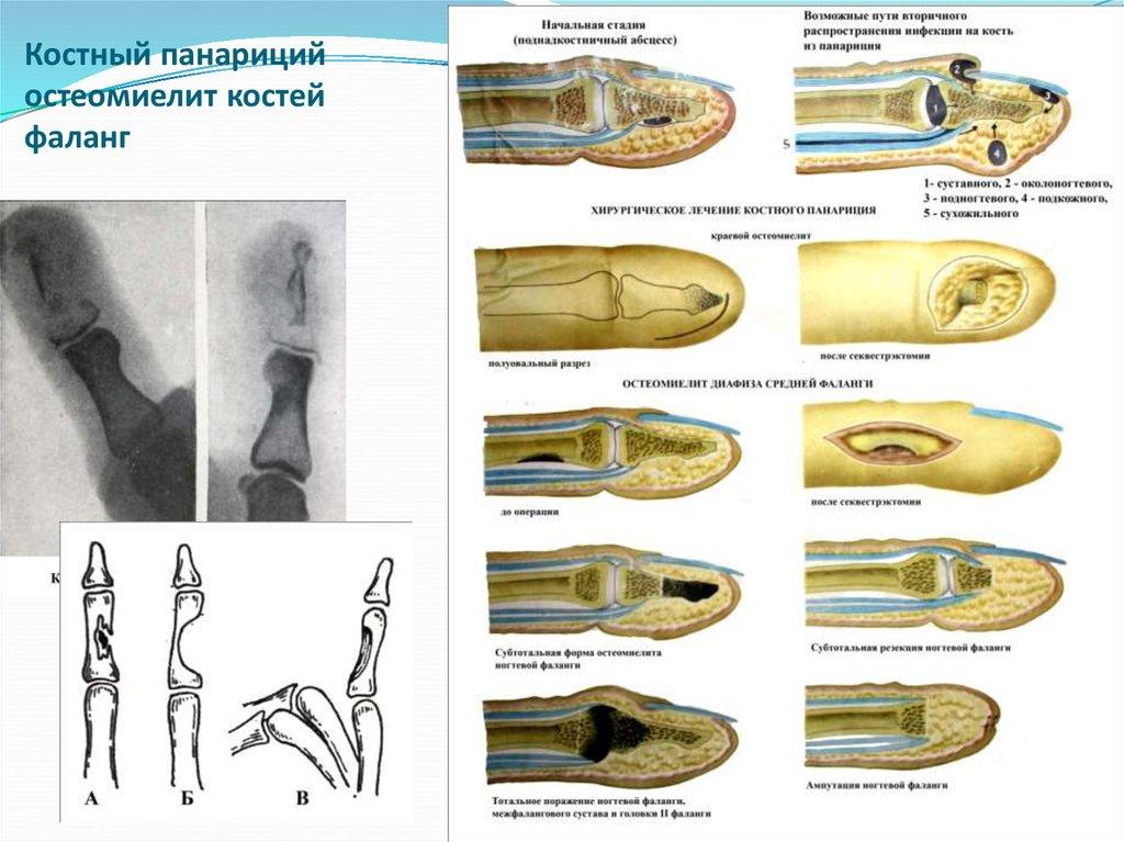 Как быстро вылечить панариций на руке, ноге: лечение народным способом в домашних условиях
