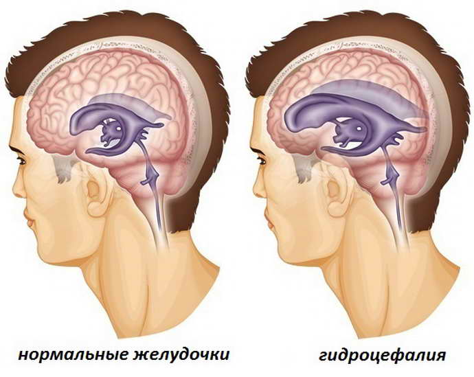 Гидроцефалия (водянка головного мозга): что это такое, симптомы заболевания у взрослых, методы лечения