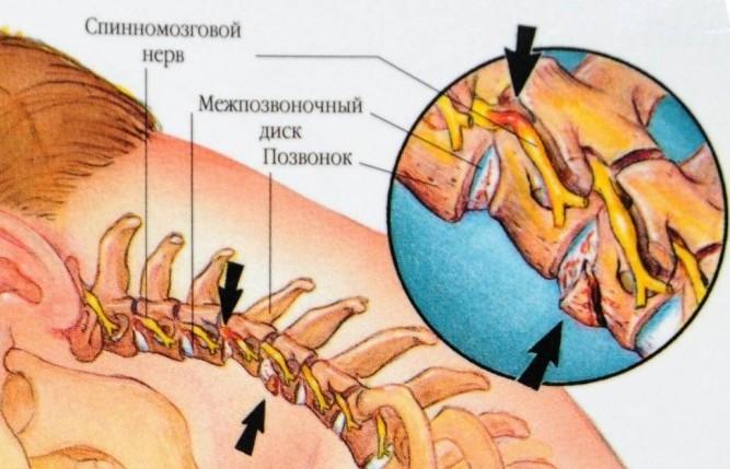 Что такое цервикалгия и как её лечить