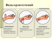 Кровотечение – причины, признаки, первая помощь