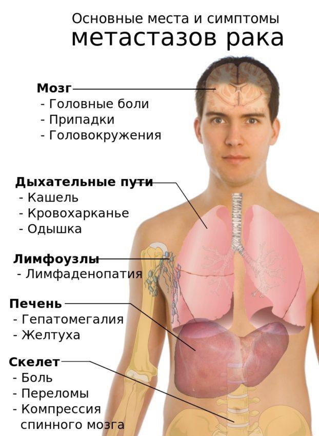 Метастазы: что это такое, симптомы и признаки