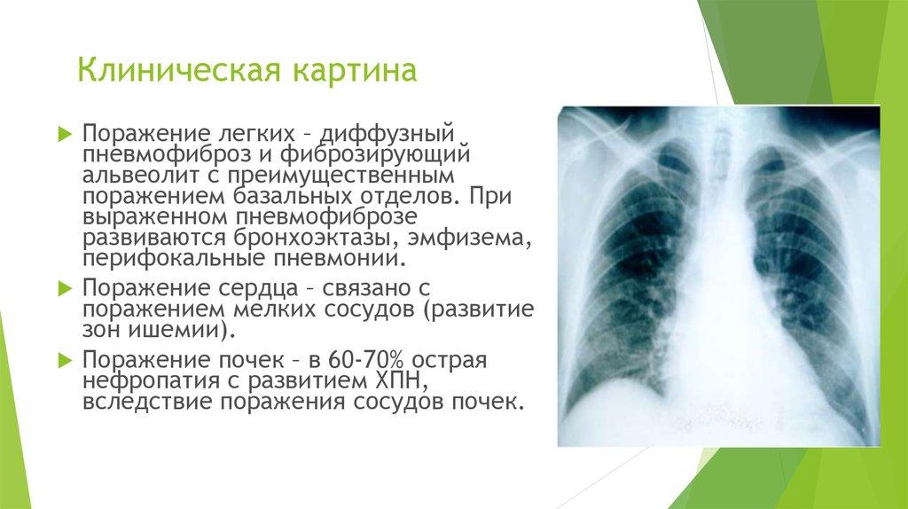 Пневмофиброз легких: что это такое, как лечить народными средствами, последствия