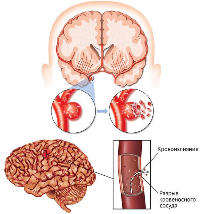 Что такое ишемический инсульт?