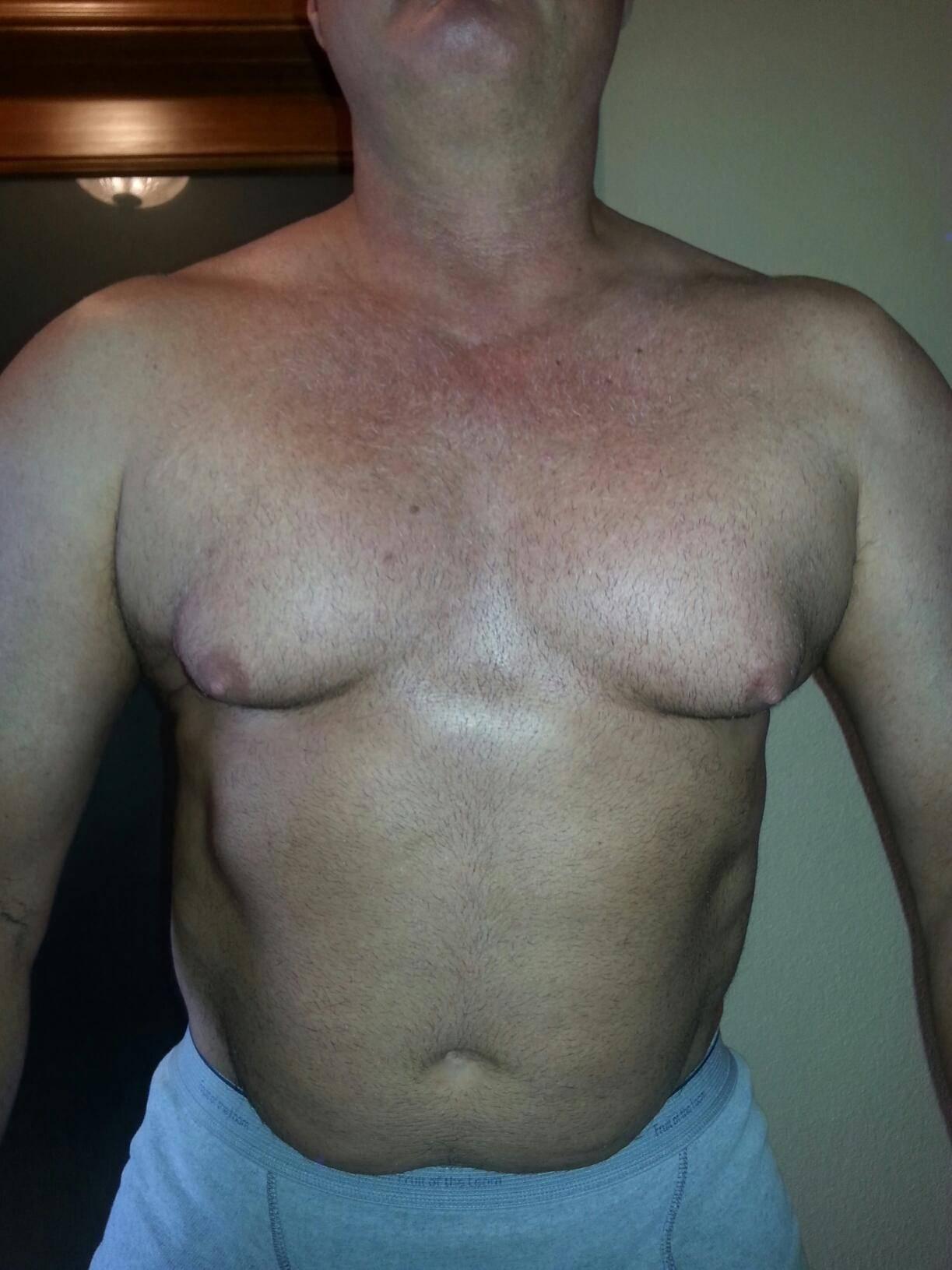 Гинекомастия: причины возникновения у мужчин, симптомы и лечение