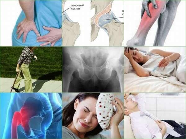 Что такое остеоартрит и как его правильно лечить