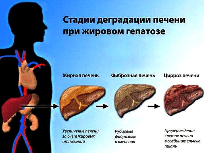 Что такое жировой гепатоз и чем он опасен? как лечить гепатоз?
