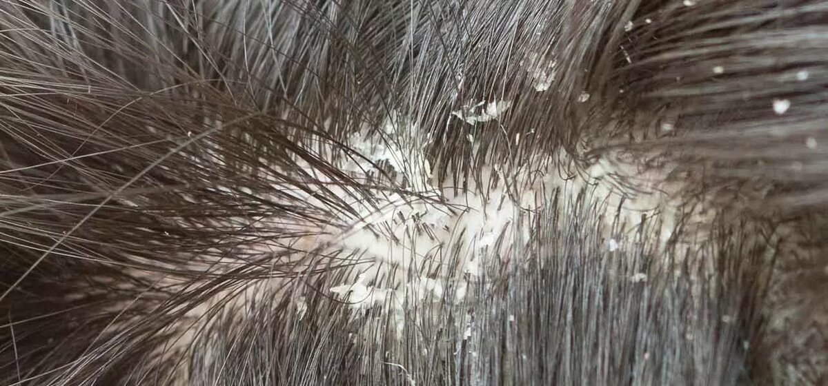 Белый налет на головке у мужчин