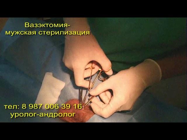 Вазэктомия это - стерилизация у мужчин, стоимость и последствия, отзывы