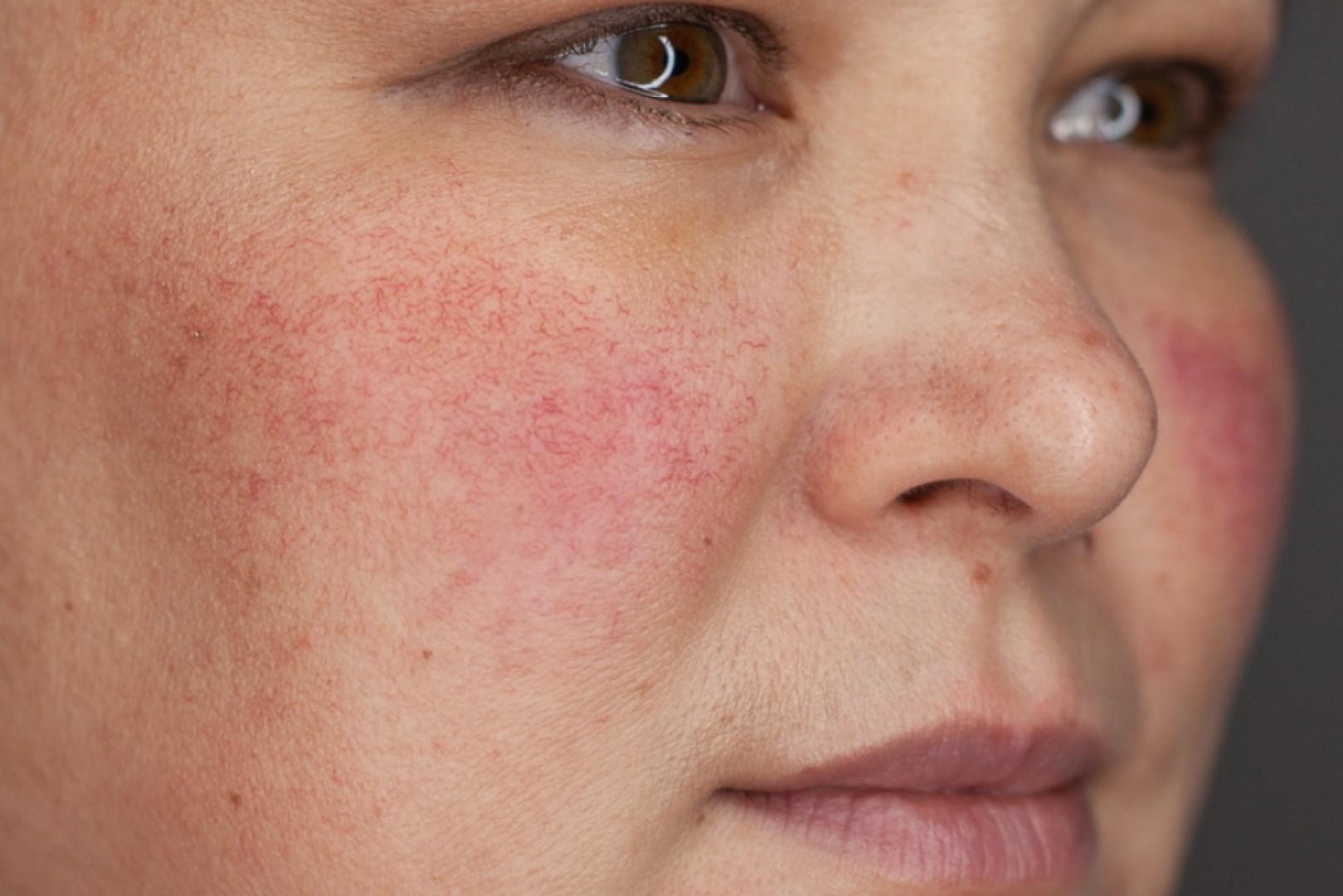 Гиперемия кожных покровов - симптомы и лечение