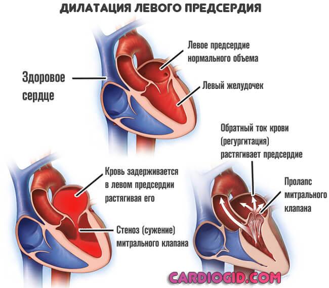 Дилатация полости левого, правого предсердия желудочка: что это такое, причины, лечение