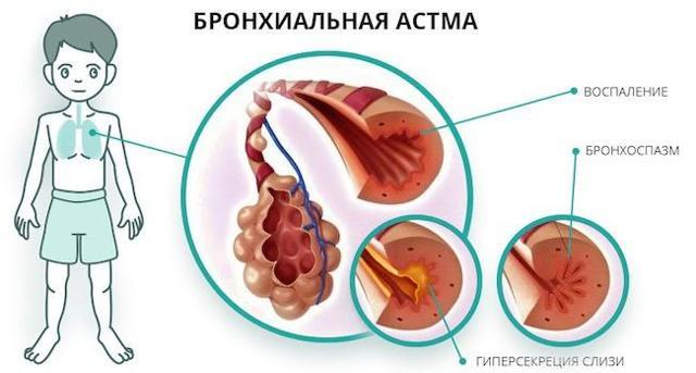 Белая мокрота при кашле у взрослых: цвет слизи и приступы в течение дня, медикаментозная терапия и отхаркивающие препараты, народные средства
