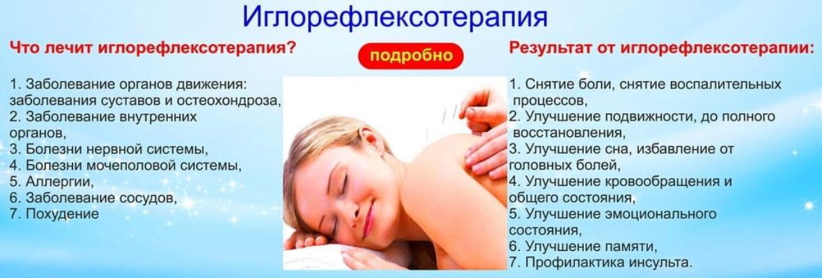 Что такое рефлексотерапия. рефлексотерапия–что это и в каких случаях применяется. как происходит воздействие на организм