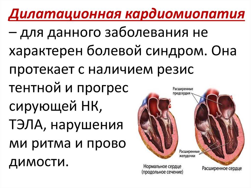 Дилатационная кардиомиопатия — википедия с видео // wiki 2