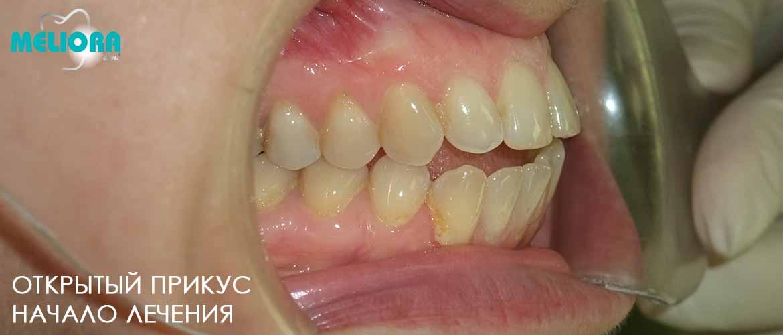 Прямой прикус - стоматолог