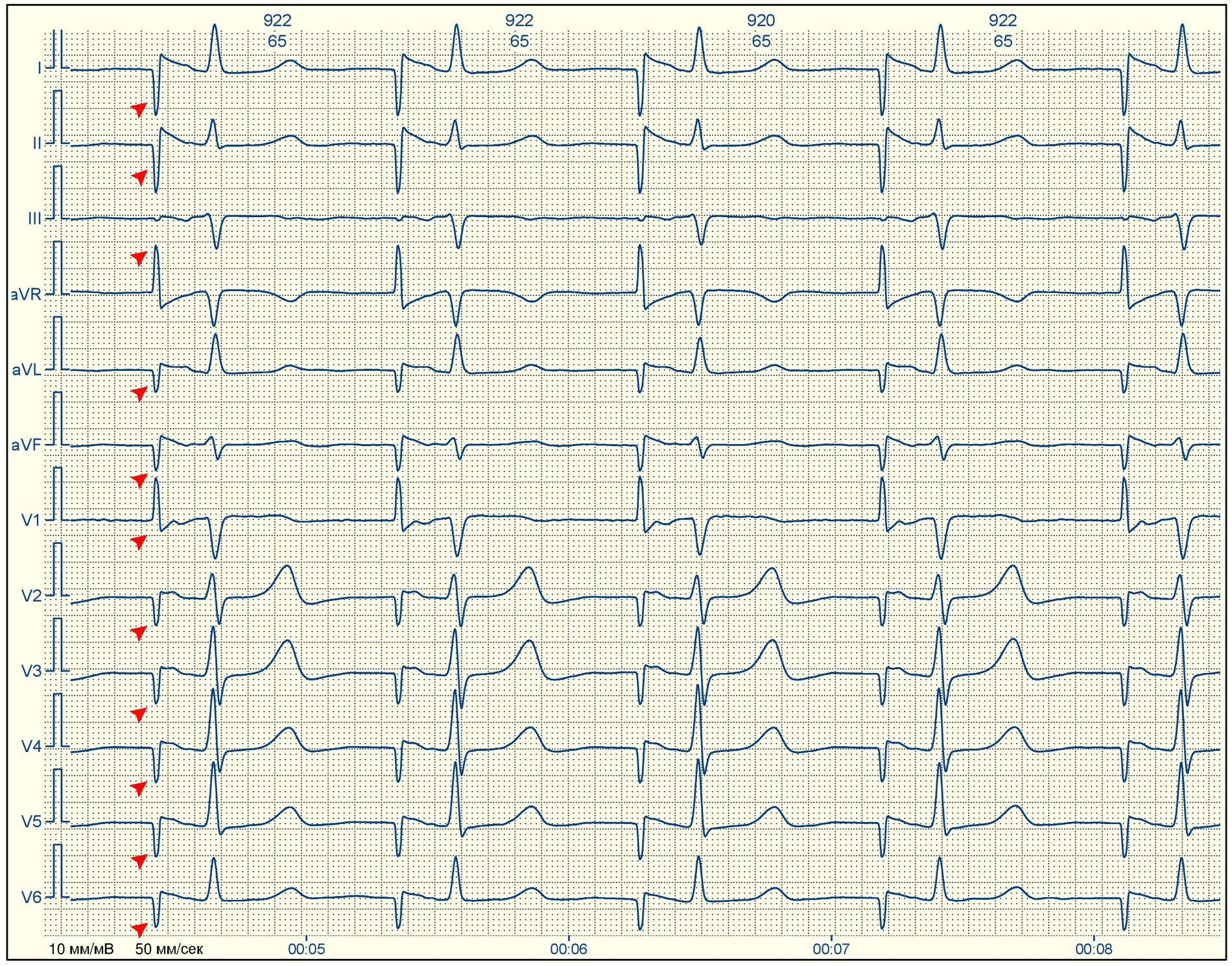 Синусовый ритм на экг: что это такое, расшифровка результатов кардиограммы