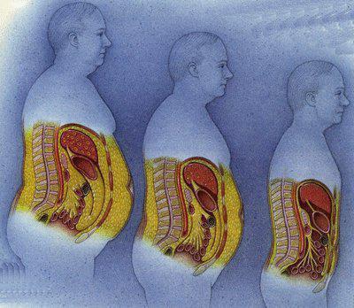 Что такое сальник в кишечнике - твой кишечник